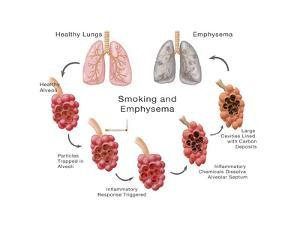 Lung Damage Leading to Emphysema by Monica Schroeder