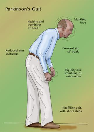 Man with Parkinson's Disease, Illustration by Monica Schroeder