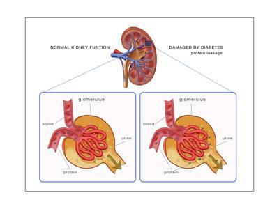 Normal and Diabetes-Damaged Kidneys, Illustration