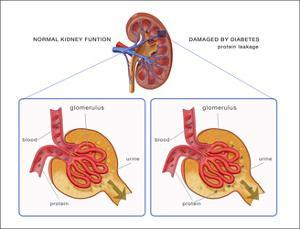 Normal and Diabetes-Damaged Kidneys, Illustration by Monica Schroeder