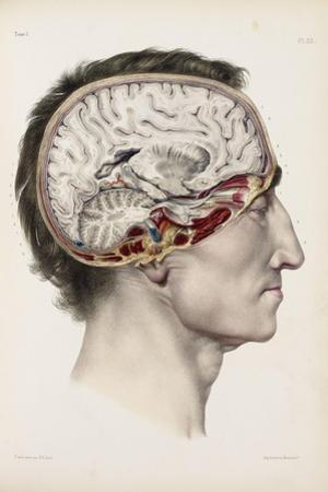 A Hand Coloured Lithograph of a Dissected Head in Profile Showing the Brain
