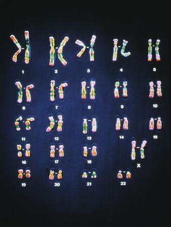 https://imgc.allpostersimages.com/img/posters/normal-female-chromosomes_u-L-PZID1F0.jpg?artPerspective=n