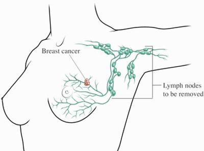 Breast Cancer - Lymphectomy Surgery (Removal of Axillary Lymph Nodes) by Nucleus Medical Art