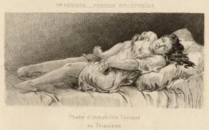 Mental Patient at la Salpetriere in Phase of Tonic Immobility by P. Richer