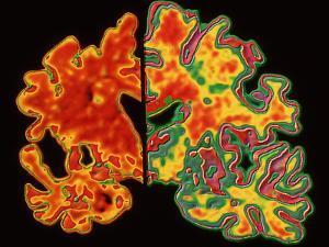 Alzheimer's Brain by PASIEKA