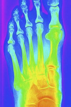 Normal Left Foot, X-ray by PASIEKA