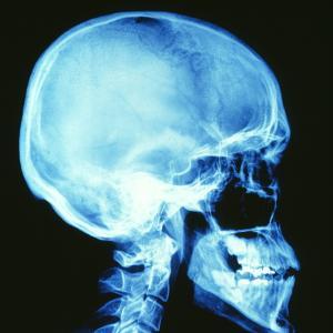 Skull X-ray by PASIEKA
