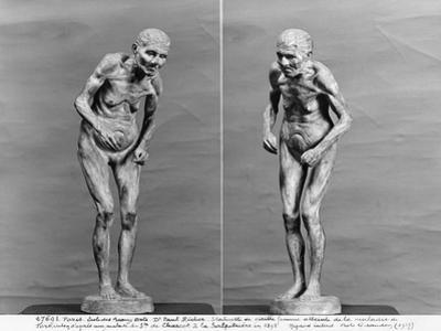 Statuette of an Old Woman with Parkinson's Disease, After 1895