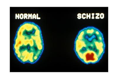 https://imgc.allpostersimages.com/img/posters/pet-scans-normal-and-schizophrenic_u-L-PYYGHD0.jpg?artPerspective=n