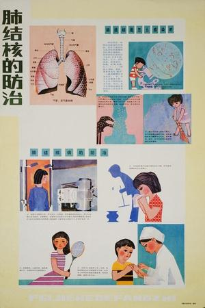https://imgc.allpostersimages.com/img/posters/preventing-tuberculosis-is-part-of-having-good-habits_u-L-PWBKJG0.jpg?artPerspective=n