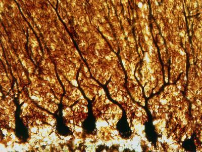 https://imgc.allpostersimages.com/img/posters/purkinje-nerve-cells_u-L-PZI8LO0.jpg?artPerspective=n