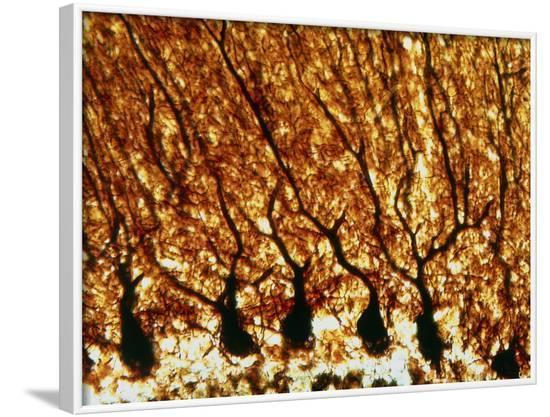 Purkinje Nerve Cells--Framed Photographic Print