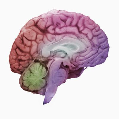 A Mid-Sagittal Section Showing the Left Half of the Human Brain, Brainstem, Midbrain by Ralph Hutchings