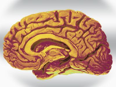 A Mid-Sagittal Section Showing the Right Half of the Human Brain, Brainstem, Midbrain by Ralph Hutchings