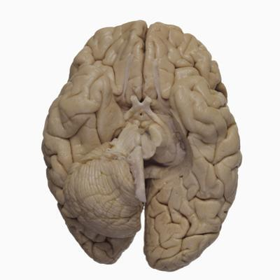 Base of the Human Brain Showing the Cerebrum, Cerebellum, and Brainstem by Ralph Hutchings