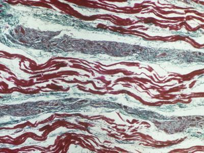 Cardiac Muscle Showing Purkinje Fibers in a Bundle of His, Longitudinal Section, LM X80 by Ralph Hutchings