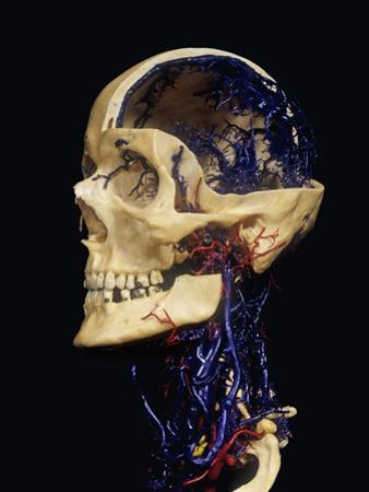 Human Skull with Resin Cast Showing Neck Blood Vessels by Ralph Hutchings