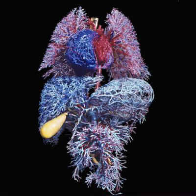 Major Organs of the Human Body Resin Cast of the Blood Vessels of the Lungs (Top) Heart by Ralph Hutchings
