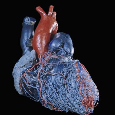 Resin Cast of Heart Anterior View by Ralph Hutchings