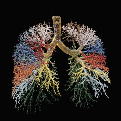 Resin Cast of Lungs, Bronchial Tree by Ralph Hutchings