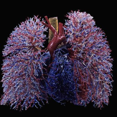 Resin Cast of Lungs, Heart, Blood Vessels, and Air Passages, Anterior View by Ralph Hutchings