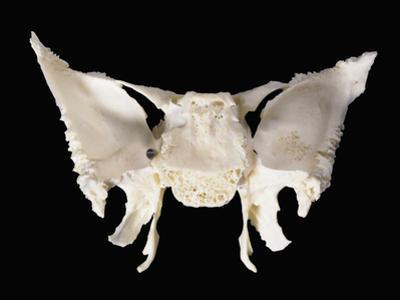 Sphenoid Skull Bone from Behind by Ralph Hutchings