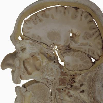 The Human Head and Brain in Sagittal Section Revealing the Position of the Brain, Brainstem by Ralph Hutchings