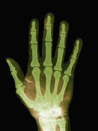 X-Ray of the Hand by Ralph Hutchings