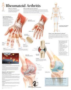 Rheumatoid Arthritis Educational Chart Poster