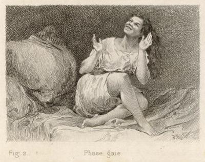 Mental Patient at la Salpetriere Sitting on Her Bed in Phase Gaie by Richer