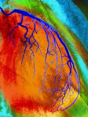 Coloured Angiogram of Coronary Artery of the Heart