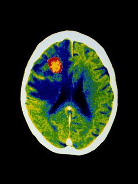 Coloured CT Scan of Brain Abscess In AIDS Patient by Science Photo Library