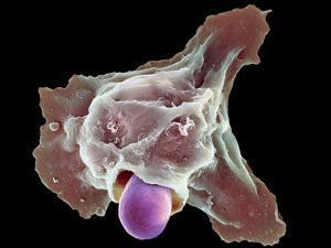 Neutrophil Engulfing Thrush Fungus, SEM by Science Photo Library