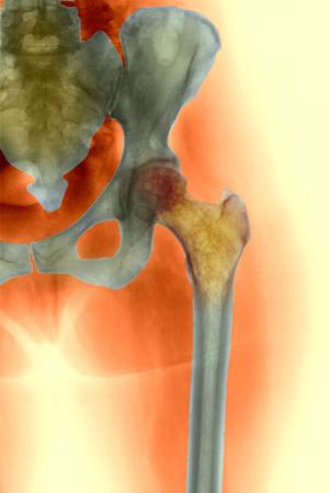 Osteoporosis of the Hip, X-ray by Science Photo Library