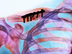 Pinned Collar Bone Fracture, X-ray by Science Photo Library