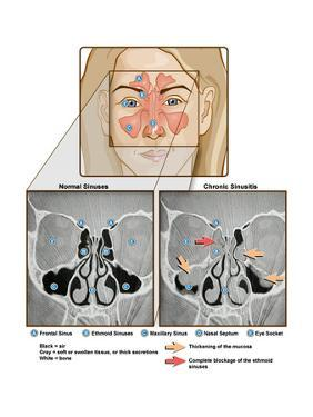 Sinuses and Sinusitis by Science Source