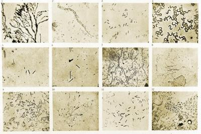 Various Bacilli Observed by Robert Koch by Science Source