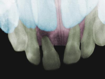 Dental X-Ray Showing Baby Teeth with Adult Teeth Behind Them by Scientifica