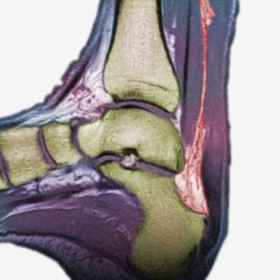 Mri Showing a Severe Rupture of the Achilles Tendon by Scientifica