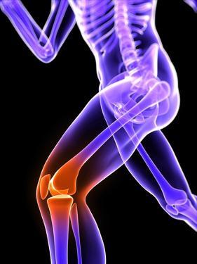 Knee Pain, Conceptual Artwork by SCIEPRO