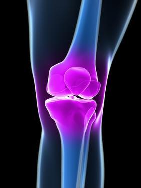 Knee Pain, Conceptual Artwork by SCIEPRO