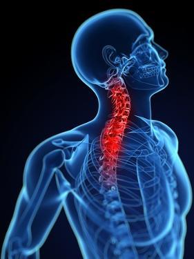 Neck Pain, Conceptual Artwork by SCIEPRO
