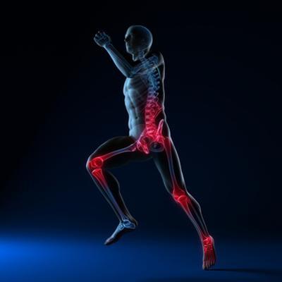 Running Injuries, Conceptual Artwork