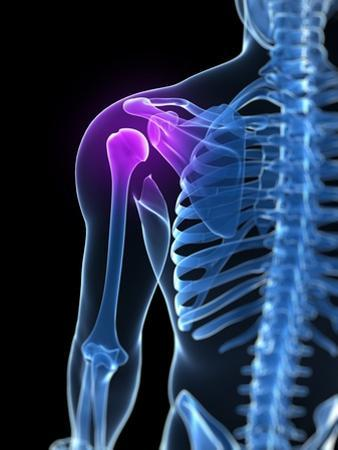 Shoulder Pain, Conceptual Artwork by SCIEPRO