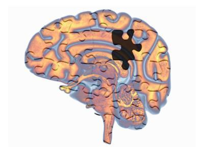 Biomedical Illustration of the Human Brain with a Jigsaw Puzzle Design Overlayed by Scott Camazine