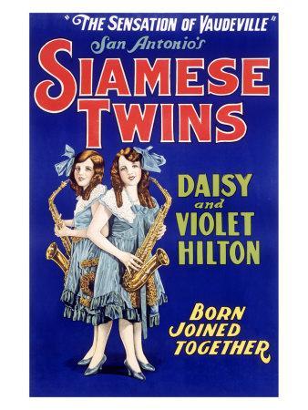 https://imgc.allpostersimages.com/img/posters/siamese-twins-hilton-sisters_u-L-EL0XK0.jpg?p=0