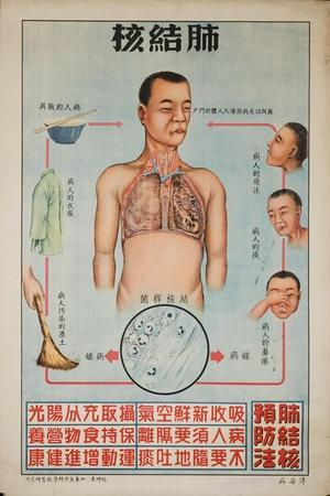 https://imgc.allpostersimages.com/img/posters/sick-people-can-spread-tb-through-bodily-discharges_u-L-PWBE4Y0.jpg?artPerspective=n