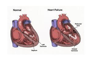 Healthy Heart vs. Heart Failure by Spencer Sutton