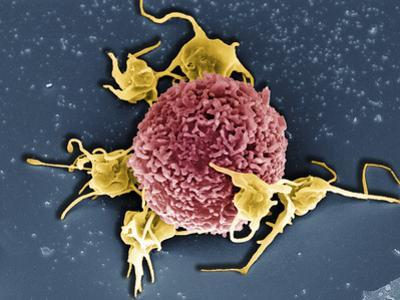 T Cell with Associated Platelets, SEM