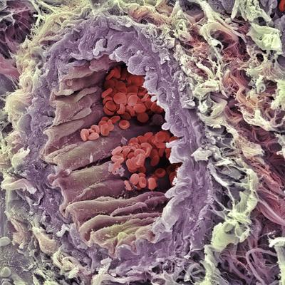 Artery SEM